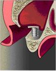 описание узи протокола с аденомой предстательной железы